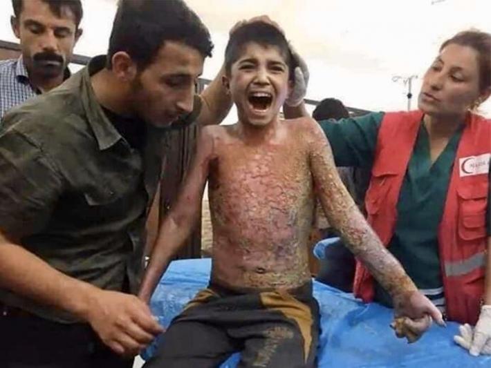Başkan Barzani, Muhammed'i Fransa'ya gönderiyor