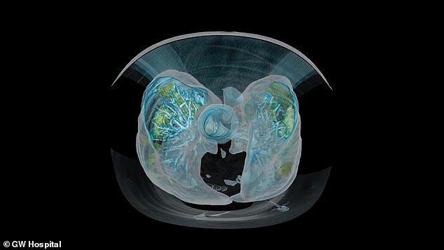 Koronavirüslü akciğeri sanal gerçeklik ile görüntülediler